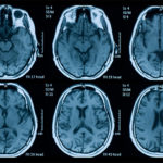 OBI-GEEK – Brief Intensive Case Management – Acquired Brain Injury Ontario Brain Injury Association (Nipissing District)