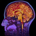 Sleep and its impact on Brain Health